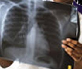 Akute und chronische Bronchitis Symptome